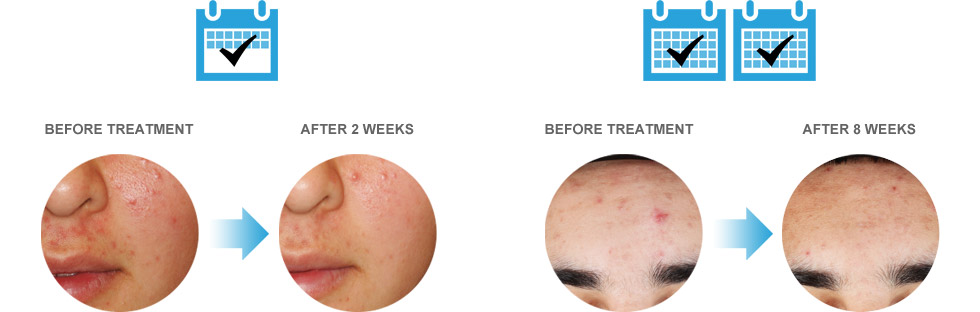 Tria Blue Light Results – Before & After