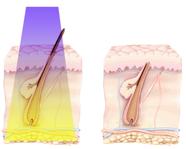 Laser Hair Removal vs. Intense Pulse Light (IPL) Diagram